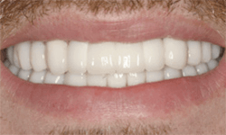 Perfected smile with natural looking tooth replacement
