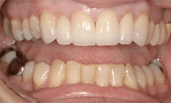 Smile following cosmetic enhancements