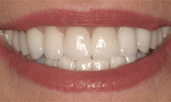 Bright white teeth following cosmetic treatment