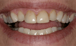 Teeth with deep yellow staining at gums