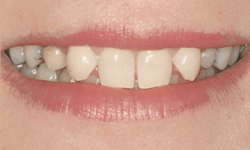 Teeth with gaps and discoloration