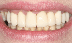 Flawlessly repaired smile following treatment