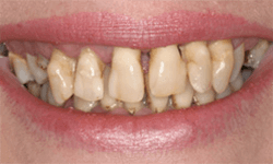 Severely discolored and misshapen teeth