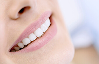 Closeup of smile with dental crown restorations