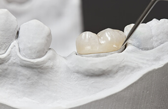 Model of smile with dental crown restoration