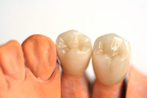 tooth colored permanent dental crowns