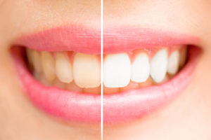 woman smiling before after teeth whitening