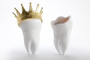 A broken tooth next to a healthy-looking tooth wearing a gold crown